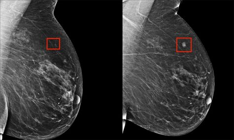 An AI system manage to identity the beginnings of a breast tumor four years before it developed (Yala)